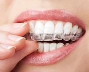 £1000 off on Invisalign Dental Treatment,  London